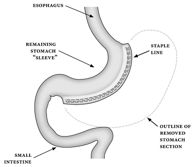 Figure 6 sleeve gastrectomy